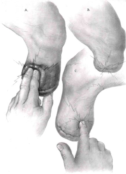 Fig. 12. Types of stump pain. About a third of | O&P Digital Resource Library