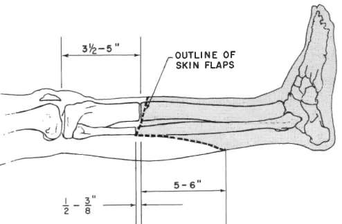 outline of skin flaps for below knee amputation on typical ischemic patient