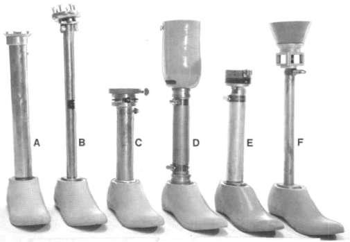 below knee prothesis