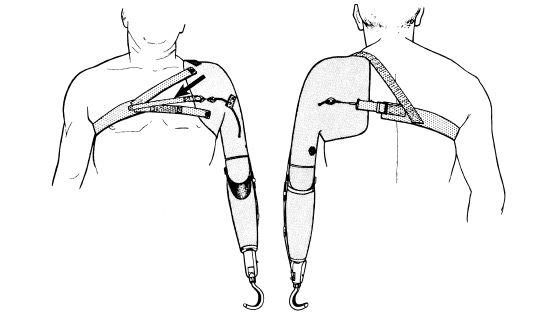 Fig 6b 33 Elbow Lock Control Strap Arrow In O Amp P
