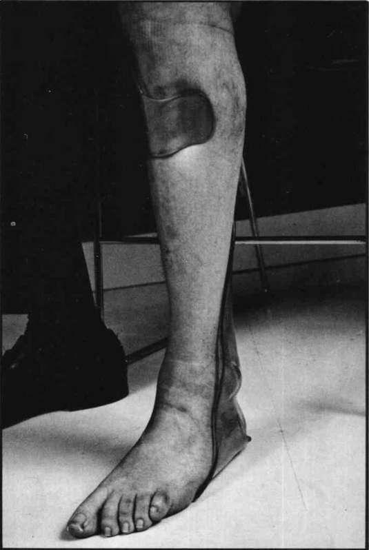 figure  hemi spiral ankle foot orthosis op digital resource library
