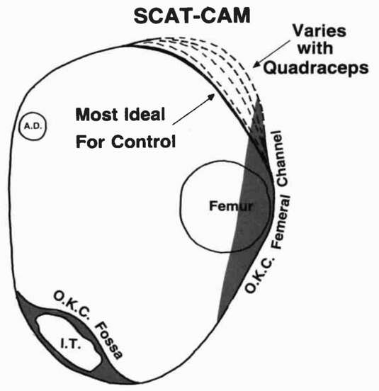 Figure 14 Cross Sectional View Of The Scat Ca