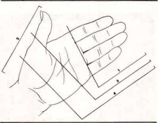 Figure 1  Levels of partial hand amputation: 1 | O&P Digital