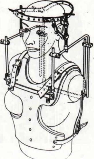 halo vest traction nursing care
