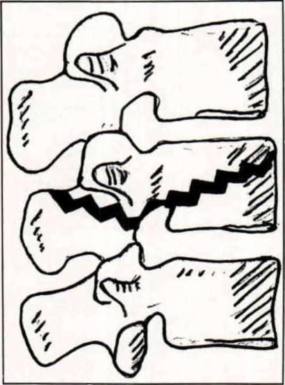 figure 4  diagram of a  u0026quot chance u0026quot  fracture