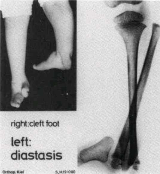 diasthesis or hernia Diastasis recti (also known as the condition can be diagnosed by physical exam, and must be differentiated from an epigastric hernia or incisional hernia.